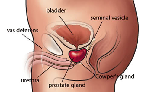 blod i sädesvätska prostatit